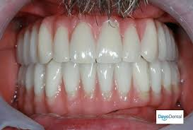 Bridge Dental Cost Estimate by What Is The Cost Of Dental Implants In Mexico Dayo