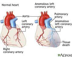 External Heart Anatomy External Structure Of The Heart Anatomy Physiology Pinterest