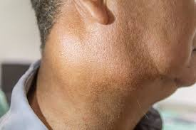 ingrown hair on chin infection the mystery of those lumps and bumps on skin explained reader s