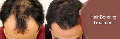 hair bonding hair bonding treatment in sadashiv peth pune