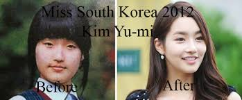 Asian Family Plastic Surgery Meme - do all south korean girls get plastic surgery well i did at