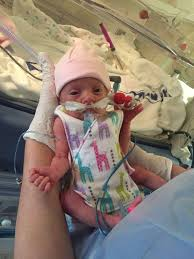 micro preemie premature baby top smock preemie clothes