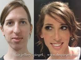 feminization hair facial feminization surgeon before and after ffs surgery photos