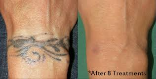how effective is tattoo removal best tattoo 2017