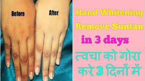how to lighten hands feet neck u0026 body remove suntan dark spots