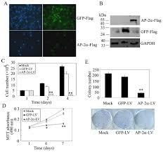 Flag Measurements Ap 2α Inhibits Hepatocellular Carcinoma Cell Growth And Migration