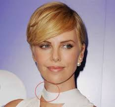 bandage hair shaped pattern baldness charlize theron hides bandages on red carpet after neck surgery