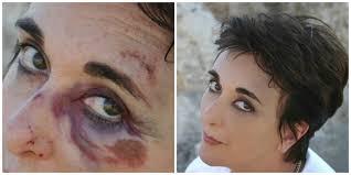 best makeup to cover veins under eyes mugeek vidalondon