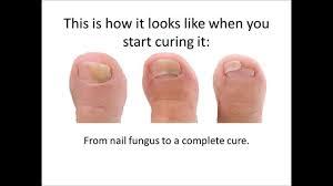 yellow nails toe nail fungus treatment nail fungus treatment reviews how to get rid of nail fungus for good
