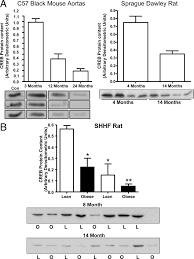 Ying Long Bad Neustadt Creb Downregulation In Vascular Disease Arteriosclerosis