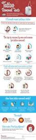 interesting facts about laser tattoo removal infographic