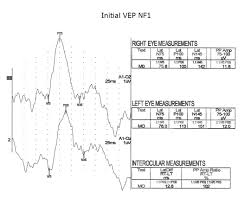 visually evoked potentials by donnell j creel u2013 webvision