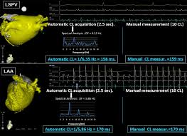 electrogram fractionation guided ablation in the left atrium