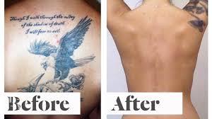tattoo pain explanation mythbusters getting a tattoo pain vs tattoo removal pain laseraway