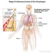Human Anatomy Liver And Kidneys Esophageal Cancer Treatment Pdq U2014health Professional Version