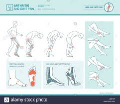 Foot Pain Map Swollen Ankles Stock Photos U0026 Swollen Ankles Stock Images Alamy