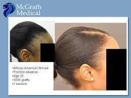 hairr styles for woman with alopica solutions for traction alopecia tom magliaro a blog about hair