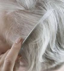 what causes hair loss in women over 50 causes for hair loss in women over 50