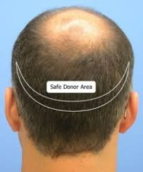 sting hair transplant hair transplant surgery procedure faq know about hair transplant