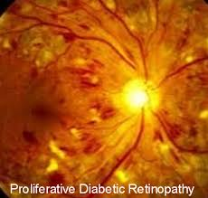 Diabetes Causing Blindness Diabetes And Diabetic Retinopathy