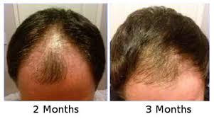 hair transplant month by month pictures korea hair transplant center transplanted hair growth timeline