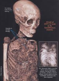the death of tutankhamun accident disease or murder ancient