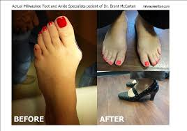 Comfortable Shoes After Foot Surgery New Bunion Surgery Before And After Photos Milwaukee Foot