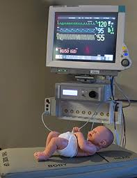 vibrating mattress validated for apnea prevention in preterm
