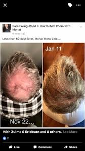 best 10 hair loss solution ideas on pinterest hair growing tips