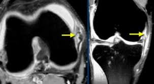 Ankle Ligament Tear Mri The Radiology Assistant Knee Non Meniscal Pathology