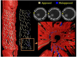 example of automatic characterization of stent malapposition 3d