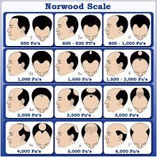 hair transplant calculator garg hair transplant clinic