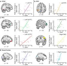brain structural integrity and intrinsic functional connectivity