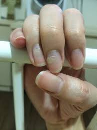 the dettol diaries peeling fingernails after hfmd