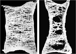 Normal Bone Anatomy And Physiology Healthy Bone Structure Left Vs Osteoporotic Bone Right