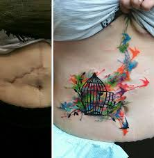 10 amazing tattoos that turn scars into works of art bored panda