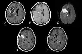Brain Mri Anatomy Update On Brain Tumor Imaging From Anatomy To Physiology