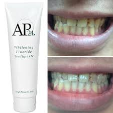 Best Way To Whiten Teeth At Home Whitening Discover 6 Amazing Natural Ways Whiten Teeth Avoid