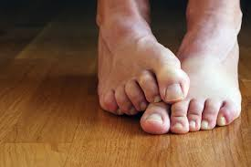 How Do You Get Planters Warts by Prevent Plantar Warts