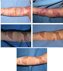 contracture of skin graft in human burns effect of artificial