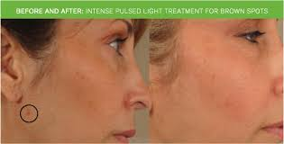intense pulsed light therapy intense pulsed light treatment reston ipl photofacial mclean
