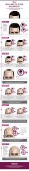 Signs Of Hair Loss Male Best 20 Male Baldness Ideas On Pinterest Receding Hairline
