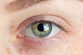 What Causes Eye Blindness 10 Keratoconus Treatments Plus Causes Symptoms