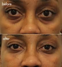 cannula tear trough filler under eye bags and dark circles nyc