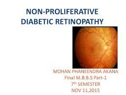 Diabetic Blindness Non Proliferative Diabetic Retinopathy By Phaneendra Akana