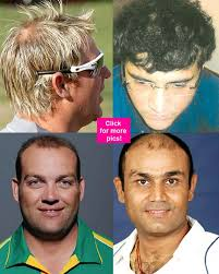 ranbir kapoor hair transplant cricketers who went for hair transplant get latest news movie