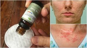 Tea Tree Oil Bathroom Cleaner 13 Uses For Tea Tree Oil That Will Change Your Life