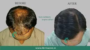 for hair is dr batra s treatment helpful for hair loss are there any side