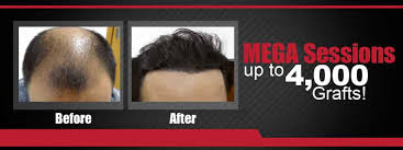 hair transplant costs in the philippines hair transplant manila philippines maxim hair restoration