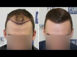 how thick is 1000 hair graft fue hair transplant 2700 grafts in nw class lll a by dr juan